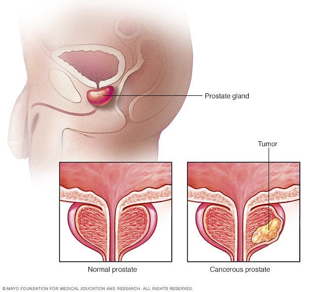 Image showing a normal prostate versus a prostate with a tumor