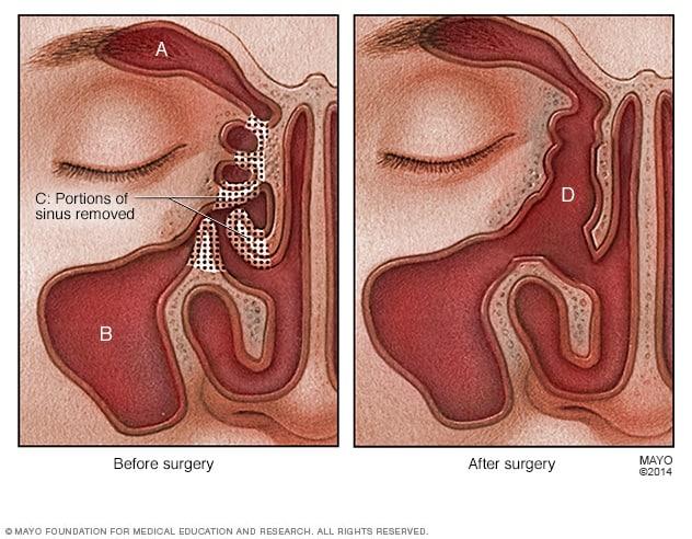 Nasal polyps - Diagnosis and treatment - Mayo Clinic