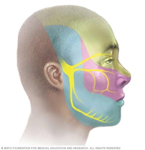Quand l'avion provoque un violent mal de tête | Réalités Biomédicales