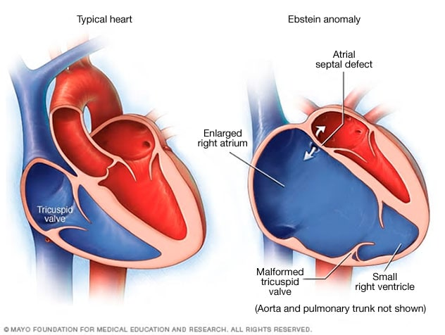 Ebstein\'s anomaly - Symptoms and causes - Mayo Clinic