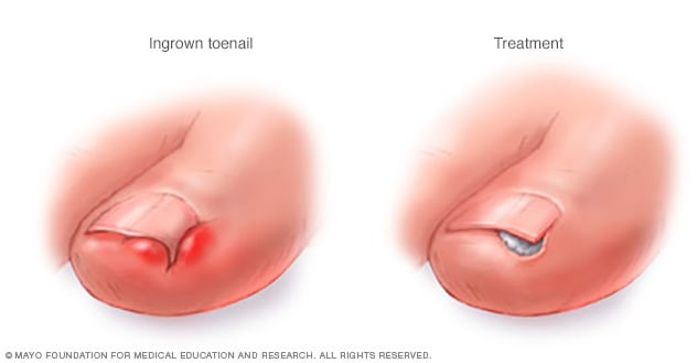 Illustration Showing Ingrown Toenail Treatment