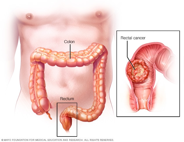 Rectal Cancer Symptoms And Causes Mayo Clinic