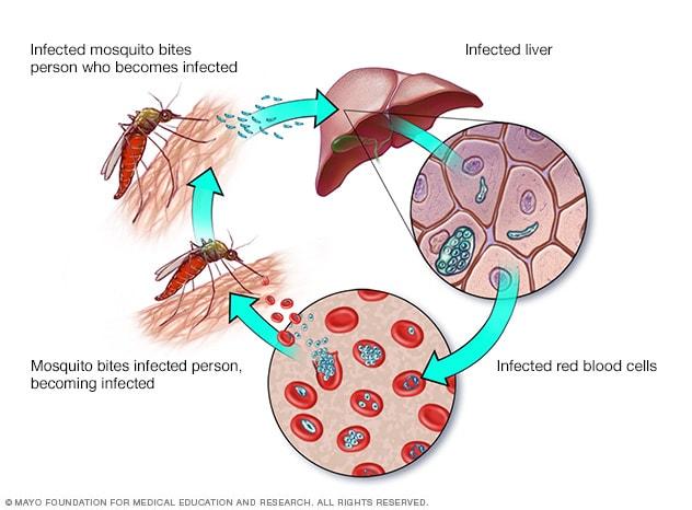Ilustración del ciclo de transmisión de la malaria