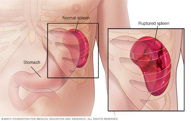 how to tell if your spleen is swollen