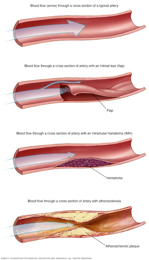 Blood flow in arteries in SCAD