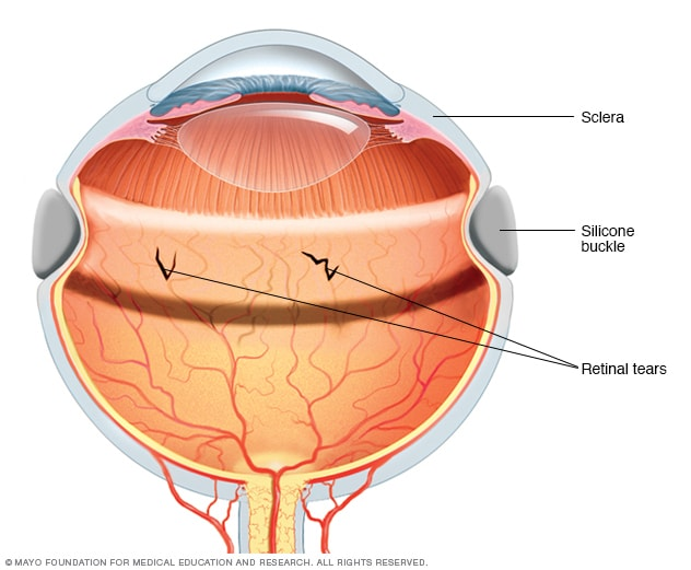 Scleral Buckle Mayo Clinic