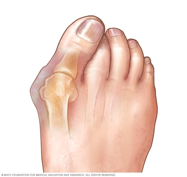 Corns And Calluses Symptoms And Causes Mayo Clinic