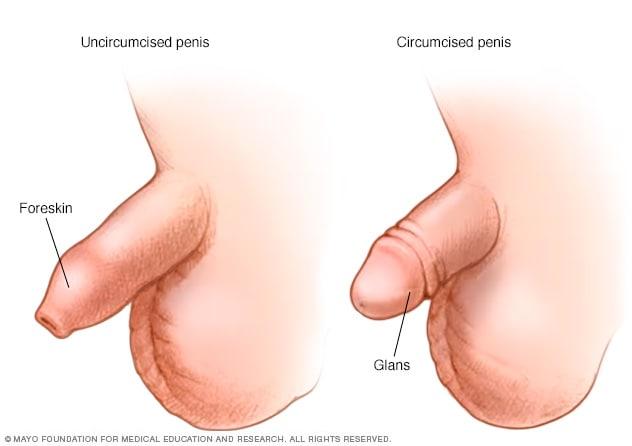 male circumcision pictures