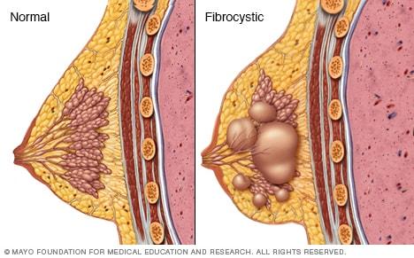 Senos fibroquísticos - Síntomas y causas - Mayo Clinic