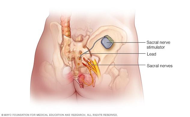 Sacral Nerve Stimulator Mayo Clinic