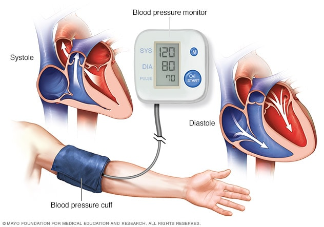 Mayo Clinic Best Foods To Naturally Lower Blood Pressure