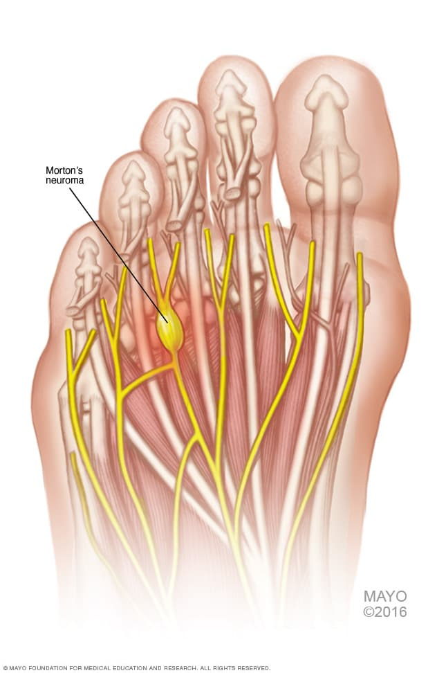 Morton S Neuroma Symptoms And Causes Mayo Clinic