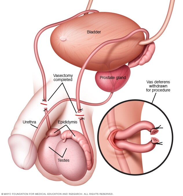 Vasectomy Mayo Clinic
