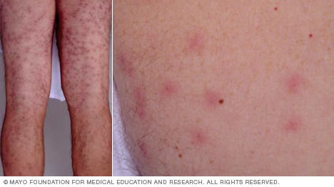 Slide Show Poison Ivy And Other Summer Skin Irritants