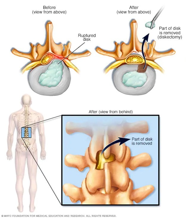 Removal of herniated portion of spinal disk
