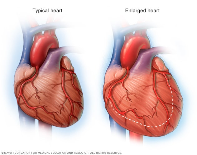 Illustration of an enlarged heart