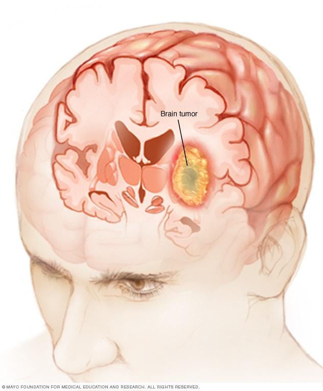 Ilustração mostrando tumor cerebral