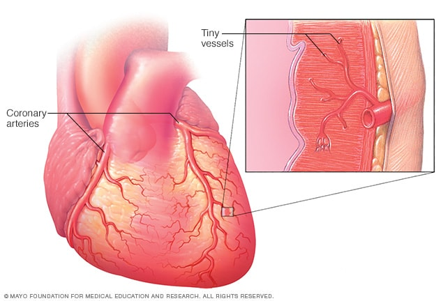 Enfermedad de los vasos sanguíneos pequeños - Mayo Clinic