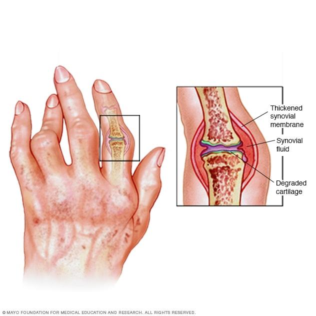 sintomas artrite reumatoide