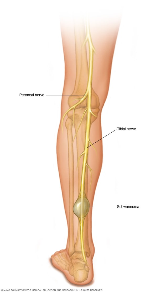 Peripheral Nerve Tumors Symptoms And Causes Mayo Clinic
