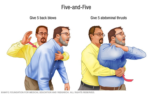 The 'five-and-five' approach