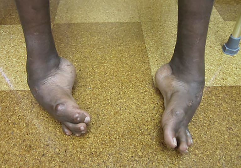 Complex Foot Deformities A Case Study Mayo Clinic