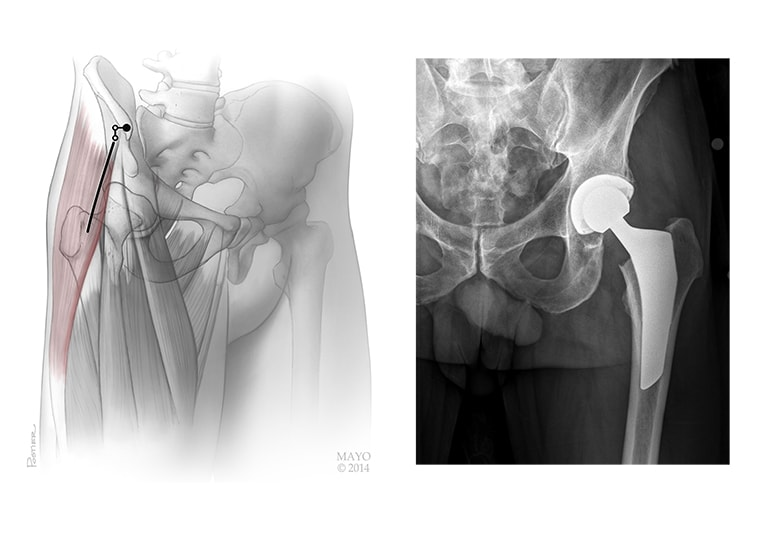 What is alternative surgery to shoulder resection arthroplasty?