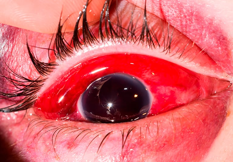 A Blow To The Eye Ocular And Orbital Trauma Mayo Clinic