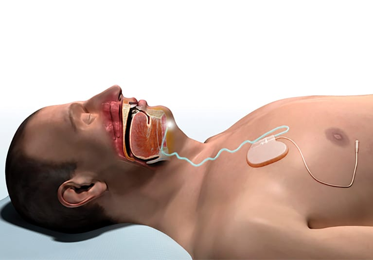 The emerging option of upper airway stimulation therapy - Mayo Clinic