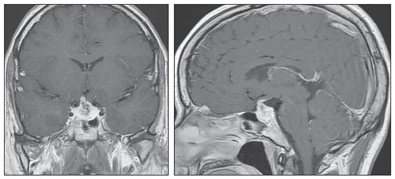 Head MRI shows a 21-by-16-millimeter sellar mass