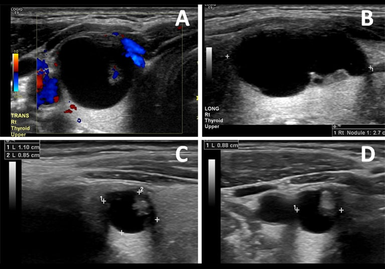 Ethanol Ablation For The Treatment Of Cystic And Predominantly