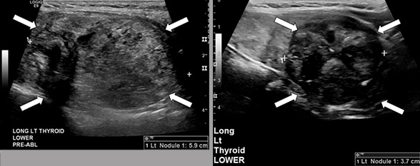 Thyroid nodules before and after RFA