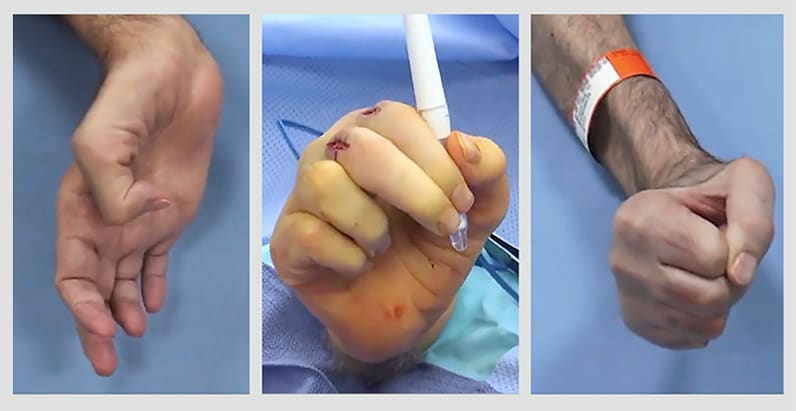 Patient's hand pre- and post-surgery