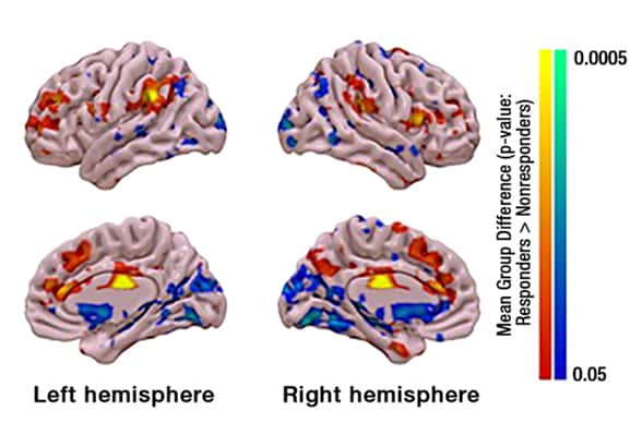 Areas of deep brain stimulation connectivity