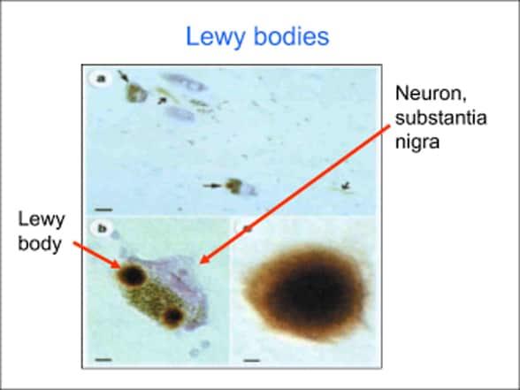 Neurology and Neurosurgery