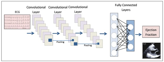 Convoluted neural network