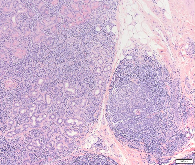 Lacrimal gland biopsy shows extensive reactive lymphoplasmacytic infiltrate