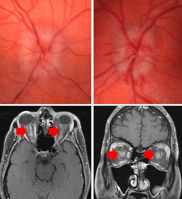 Bilateral grade 3 optic disk edema with peripapillary hemorrhages