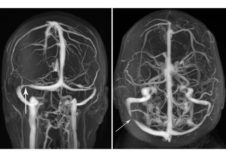 MRV images of transverse venous sinus stenosis (arrows)