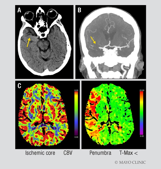 CT imaging of a woman with signs of acute ischemic stroke