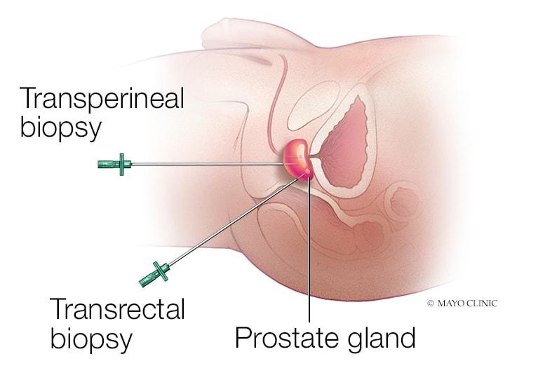 Ultrasound-guided Transperineal Prostate Biopsy