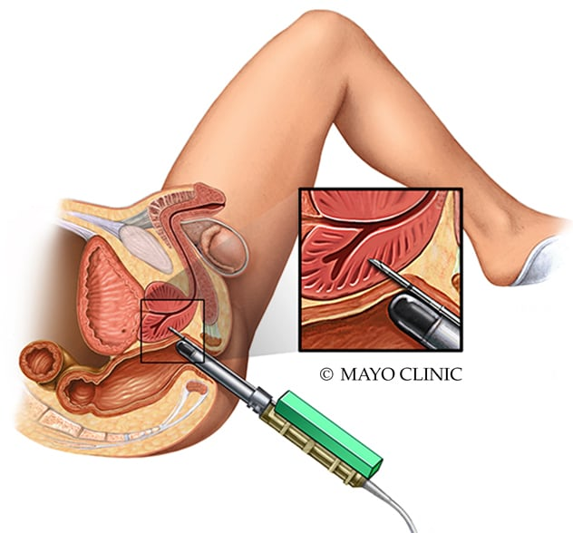 Punch a prostatitis mentén
