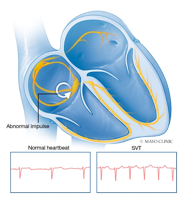 Schematic illustration shows mechanics of supraventricular tachycardia, a condition of an abnormally fast heartbeat related to faulty electrical connections.