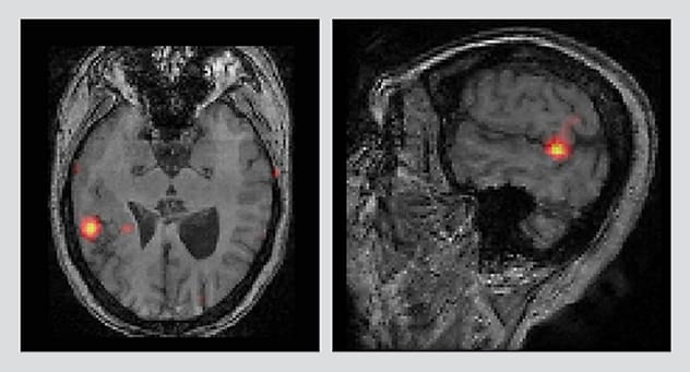 Axial and sagittal images from SISCOM show seizure onset.