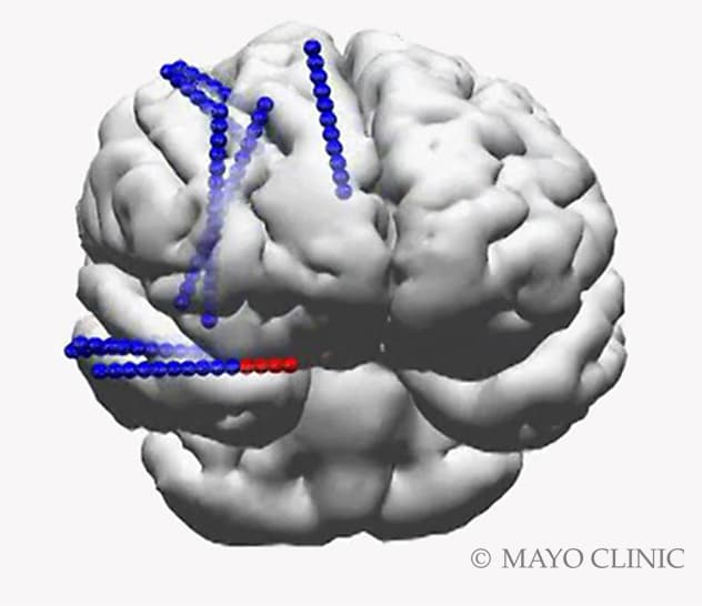 3D reconstruction shows location of implanted stereo EEG electrodes.
