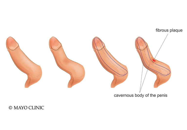 Right penis curved to Bent penis