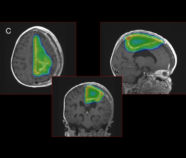 Proton beam therapy used to avoid toxicity in surrounding brain tissue