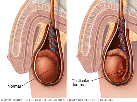 Image showing testicular lumps