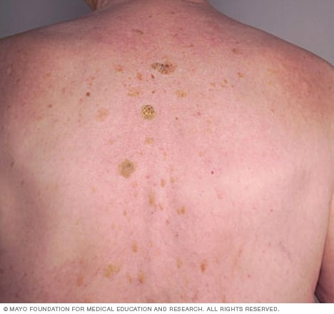 Seborrheic keratoses on the back