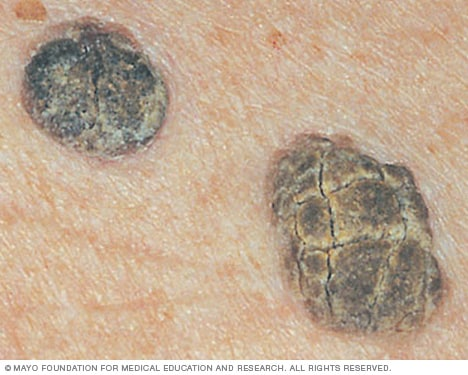 Close-up image of seborrheic keratoses